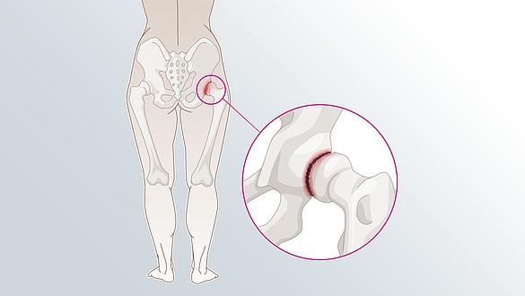 Osteoarthritis hips -